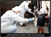 radiation_on_children1